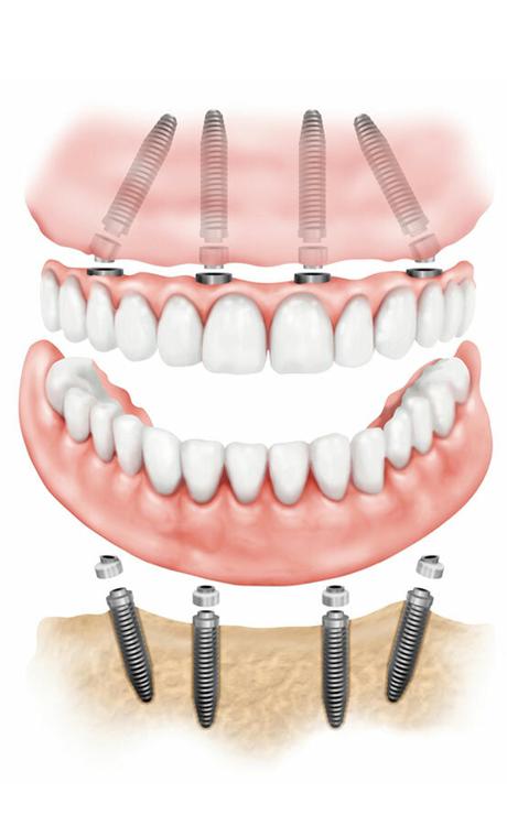 Имплантация зубов «Все на четырех»
